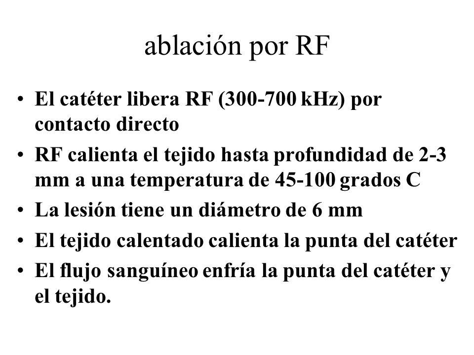 ablación por RF El catéter libera RF (300-700 kHz) por contacto directo RF calienta el tejido hasta profundidad de 2-3 mm a una temperatura de 45-100 grados C La lesión tiene un diámetro de 6 mm El tejido calentado calienta la punta del catéter El flujo sanguíneo enfría la punta del catéter y el tejido.