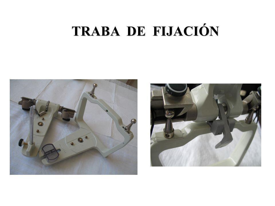 TRABA DE FIJACIÓN