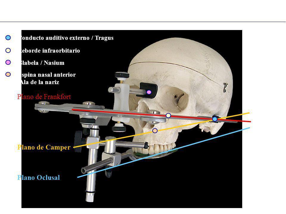 Glabela / Nasium Reborde infraorbitario Espina nasal anterior /Ala de la nariz Conducto auditivo externo / Tragus Plano Oclusal Plano de Camper Plano