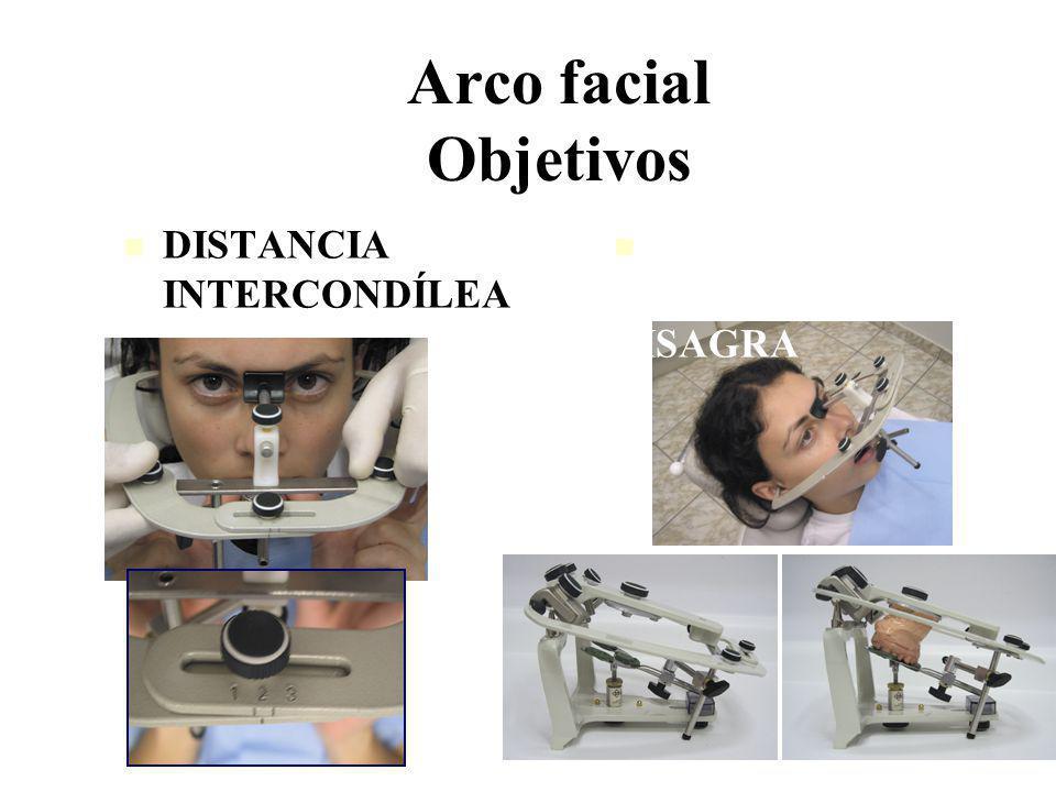 Arco facial Objetivos DISTANCIA INTERCONDÍLEA RELACIÓN MAX SUP. CON EJE DE BISAGRA