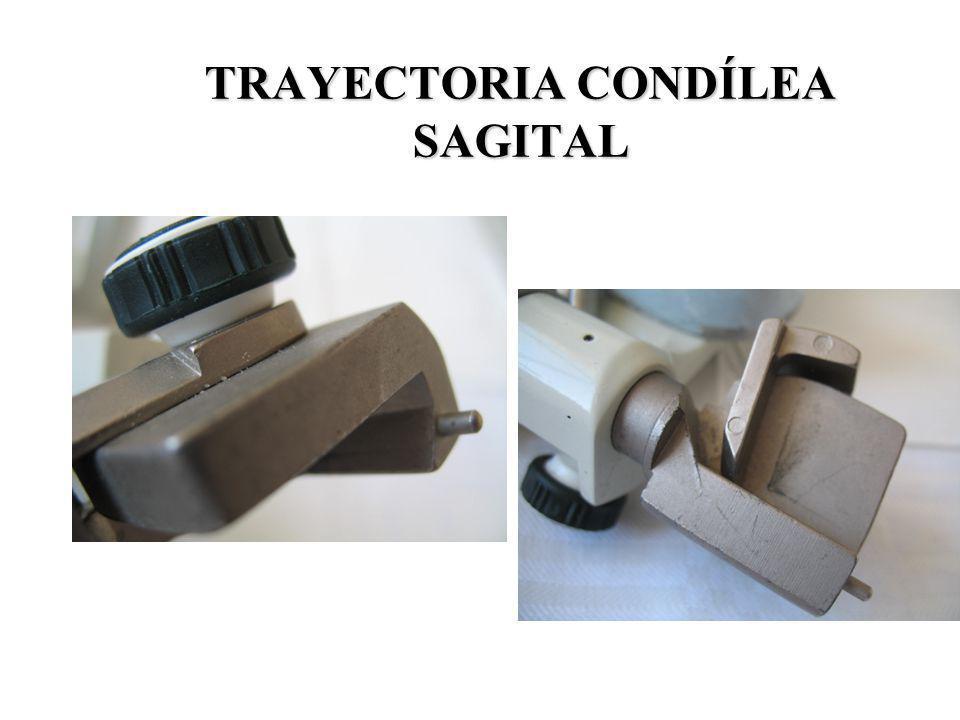 TRAYECTORIA CONDÍLEA SAGITAL