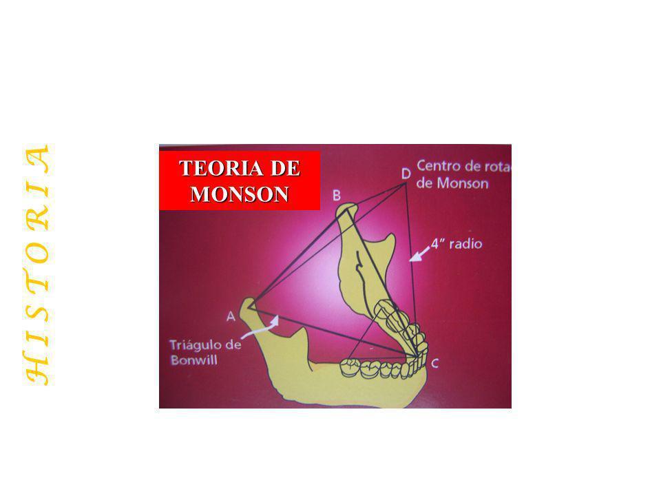 ARTICULADORES MAS USADOS: TIPO WHIP MIX Anatómico Vínculo discontínuo Arcón Semiadaptable