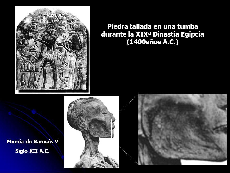 Piedra tallada en una tumba durante la XIXª Dinastía Egipcia (1400años A.C.) Momia de Ramsés V Siglo XII A.C.