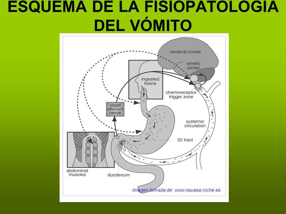 ESQUEMA DE LA FISIOPATOLOGÍA DEL VÓMITO Imagen tomada de: www.nausea.roche.es