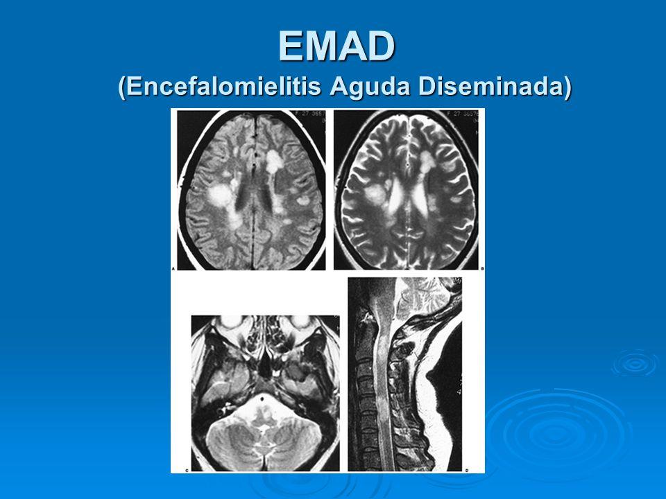 EMAD (Encefalomielitis Aguda Diseminada)