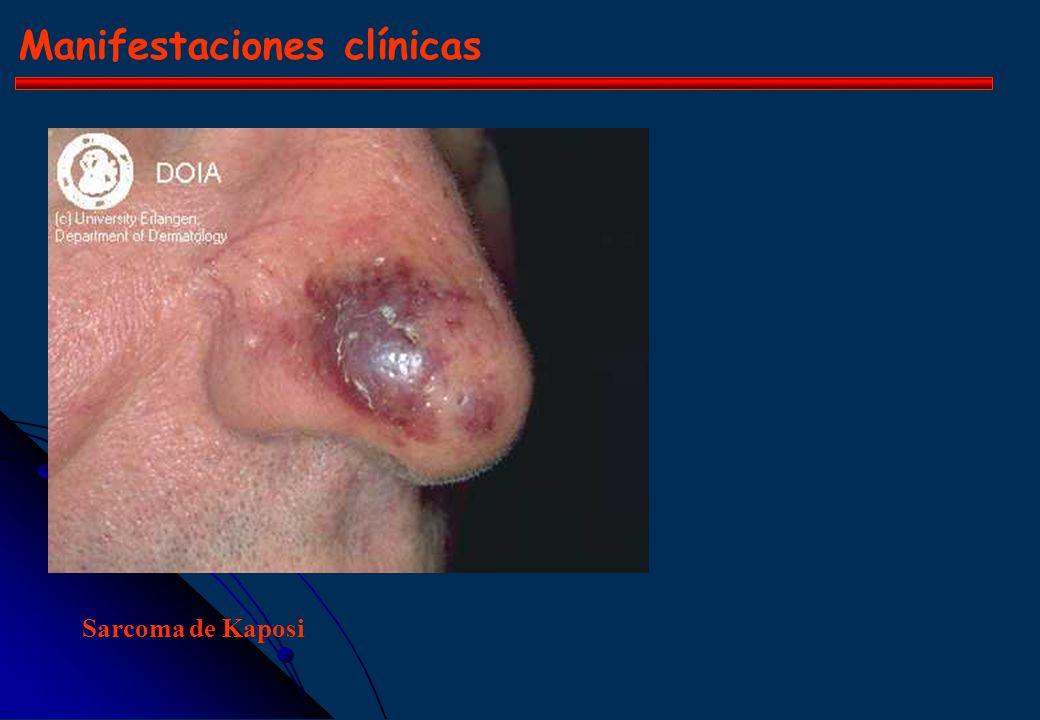 Manifestaciones clínicas Herpes labial (HSV 1) Herpes Zoster (VZV) Varicela (VZV) Herpes Zoster (VZV) Gingivoestomatitis (HSV) Herpes Zoster (VZV) Var