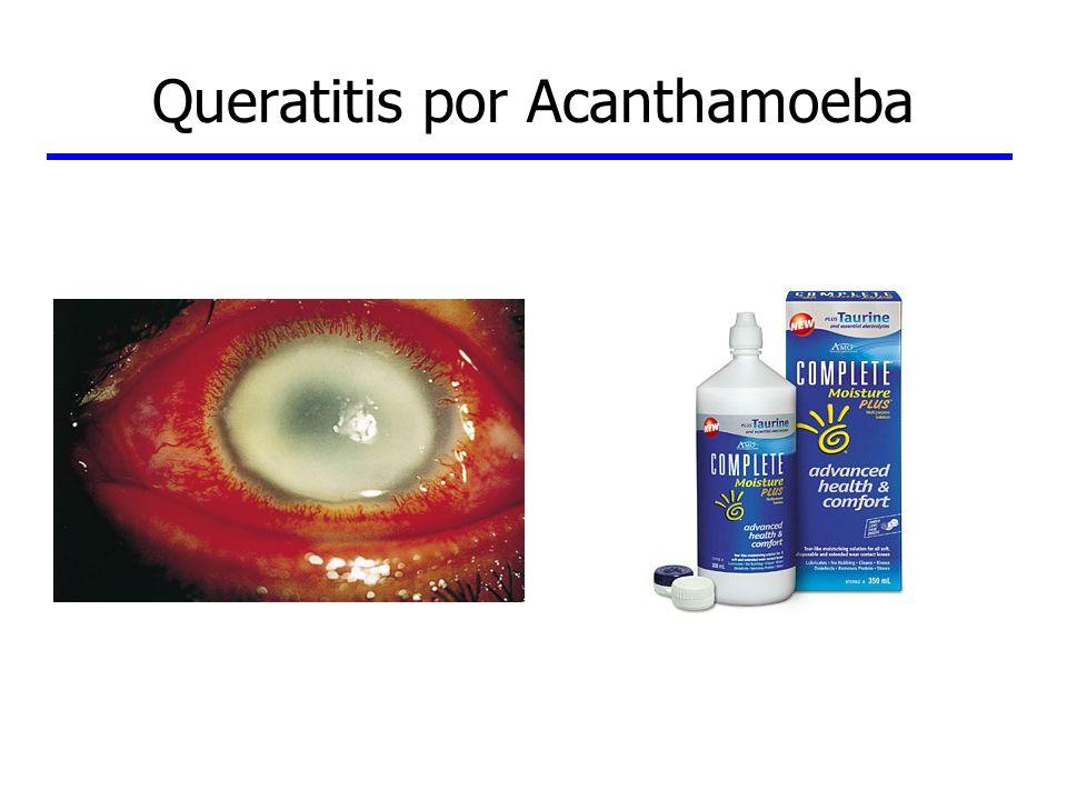Queratitis por Acanthamoeba