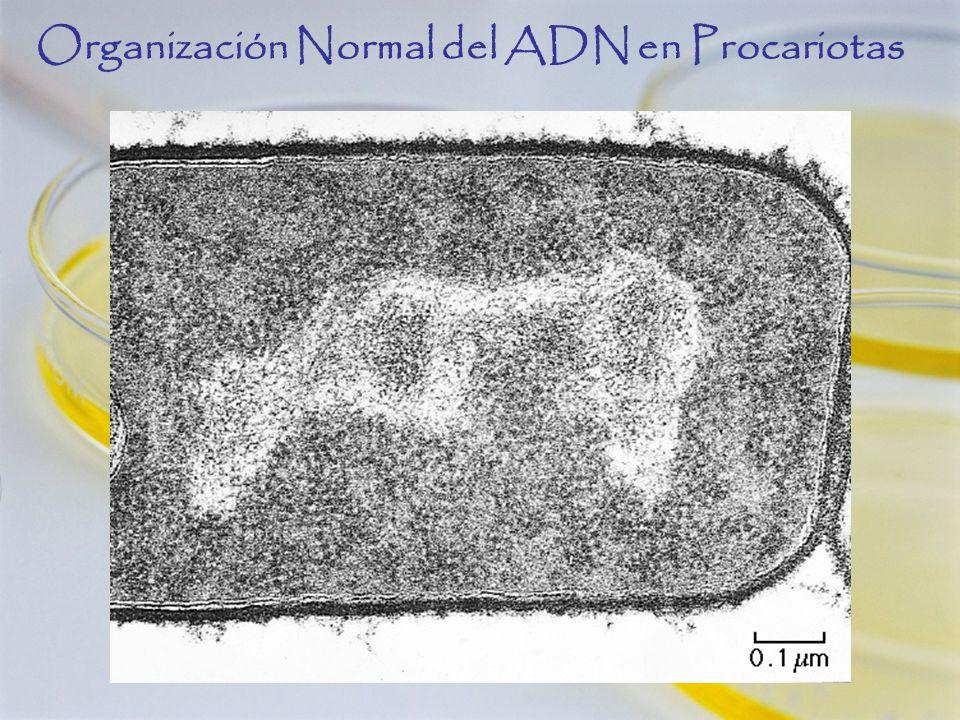 Organización Normal del ADN en Procariotas