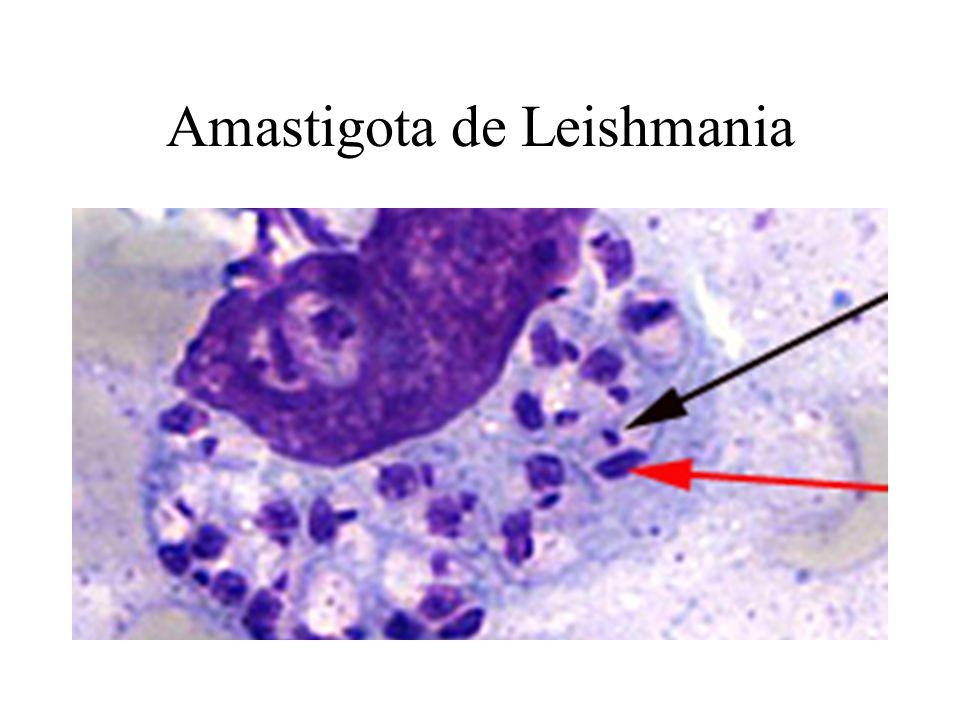 Amastigota de Leishmania