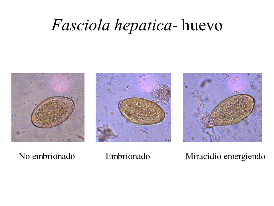 Fasciola hepatica- huevo No embrionado Embrionado Miracidio emergiendo