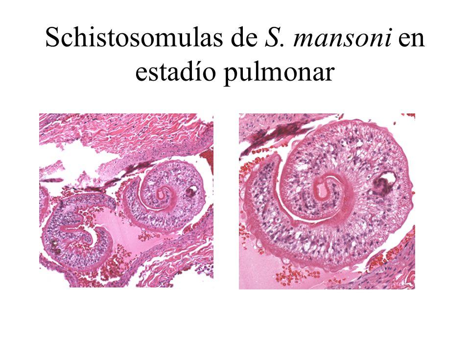 Schistosomulas de S. mansoni en estadío pulmonar