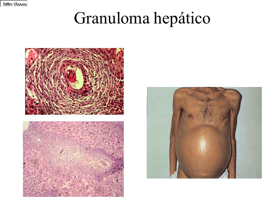 Granuloma hepático