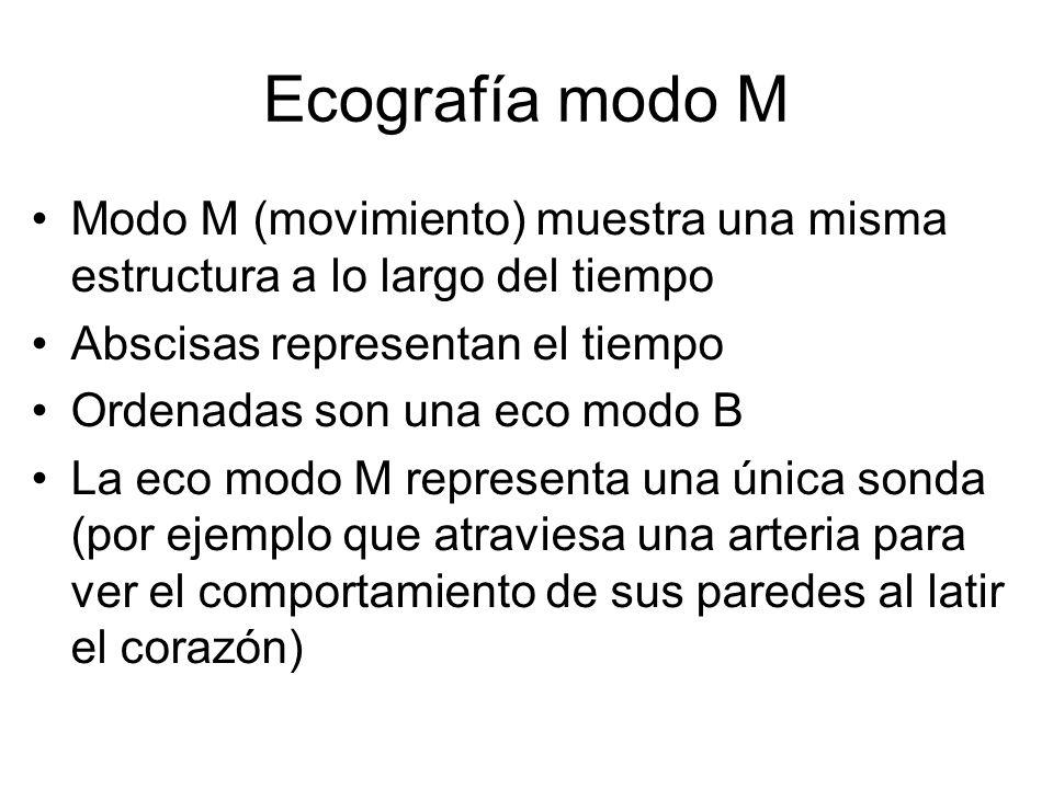 Ecografía modo M Modo M (movimiento) muestra una misma estructura a lo largo del tiempo Abscisas representan el tiempo Ordenadas son una eco modo B La
