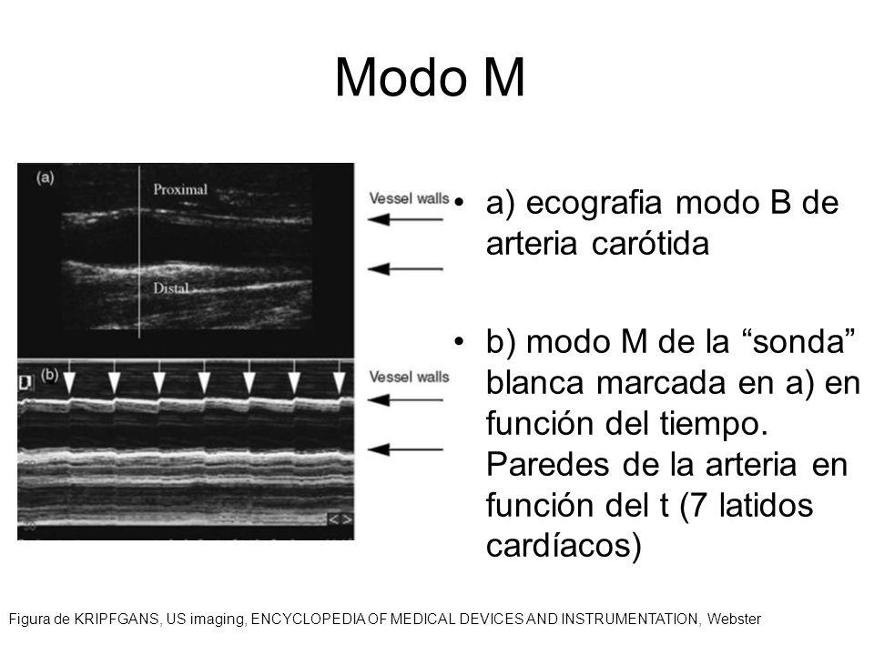 Modo M a) ecografia modo B de arteria carótida b) modo M de la sonda blanca marcada en a) en función del tiempo. Paredes de la arteria en función del