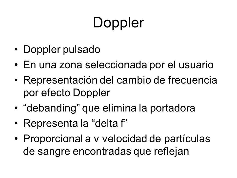 Doppler Doppler pulsado En una zona seleccionada por el usuario Representación del cambio de frecuencia por efecto Doppler debanding que elimina la po
