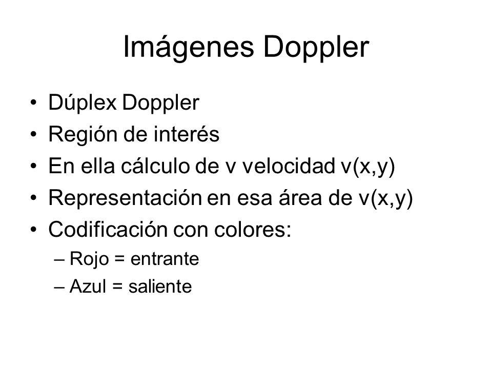 Imágenes Doppler Dúplex Doppler Región de interés En ella cálculo de v velocidad v(x,y) Representación en esa área de v(x,y) Codificación con colores: