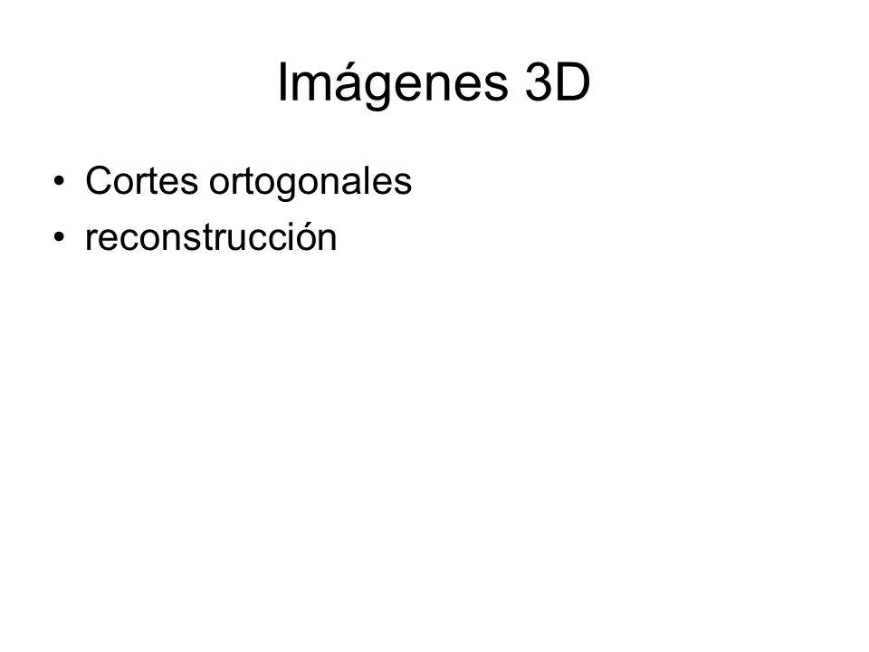 Imágenes 3D Cortes ortogonales reconstrucción