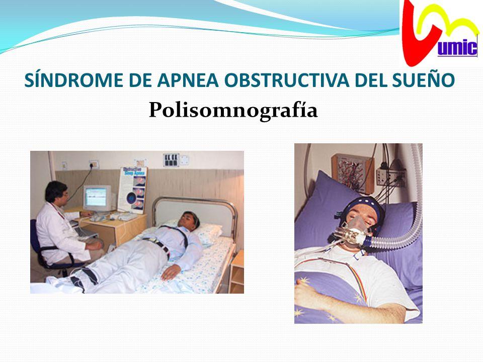 SÍNDROME DE APNEA OBSTRUCTIVA DEL SUEÑO Polisomnografía