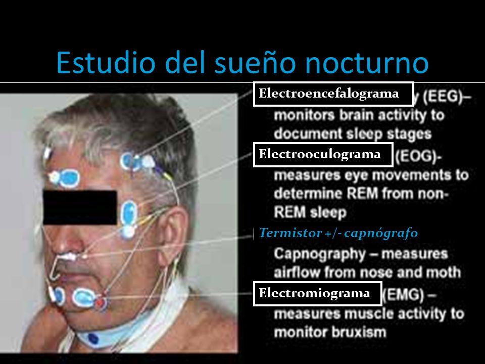 Estudio del sueño nocturno Electroencefalograma Electrooculograma Electromiograma Termistor +/- capnógrafo