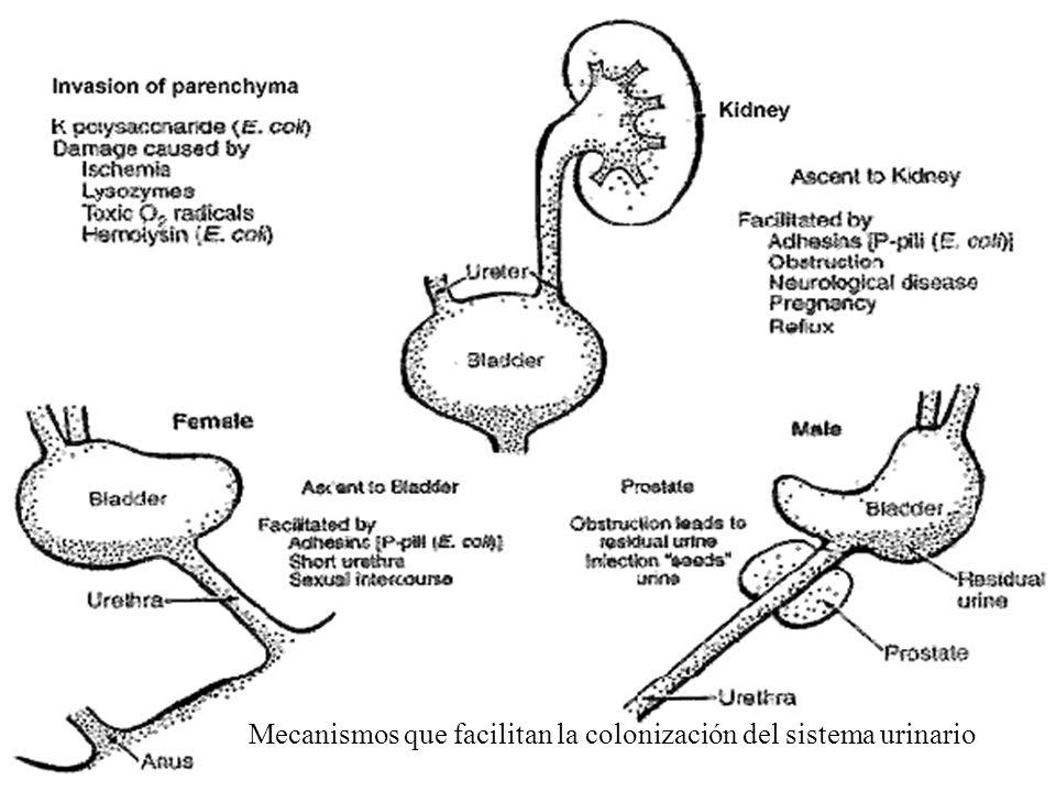 Mecanismos que facilitan la colonización del sistema urinario