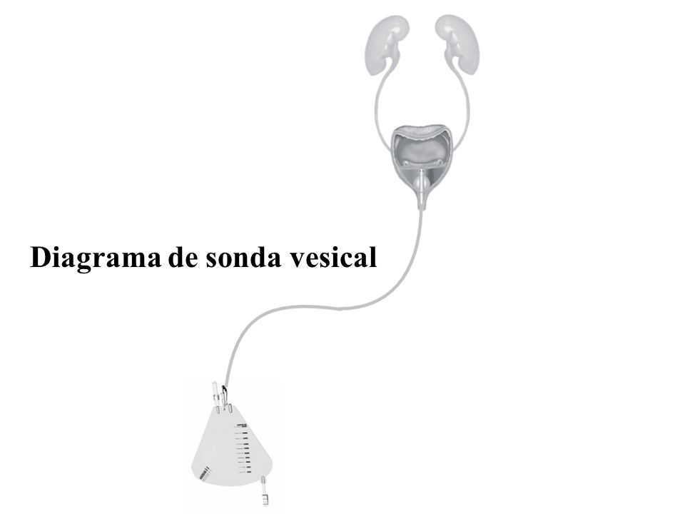 Diagrama de sonda vesical