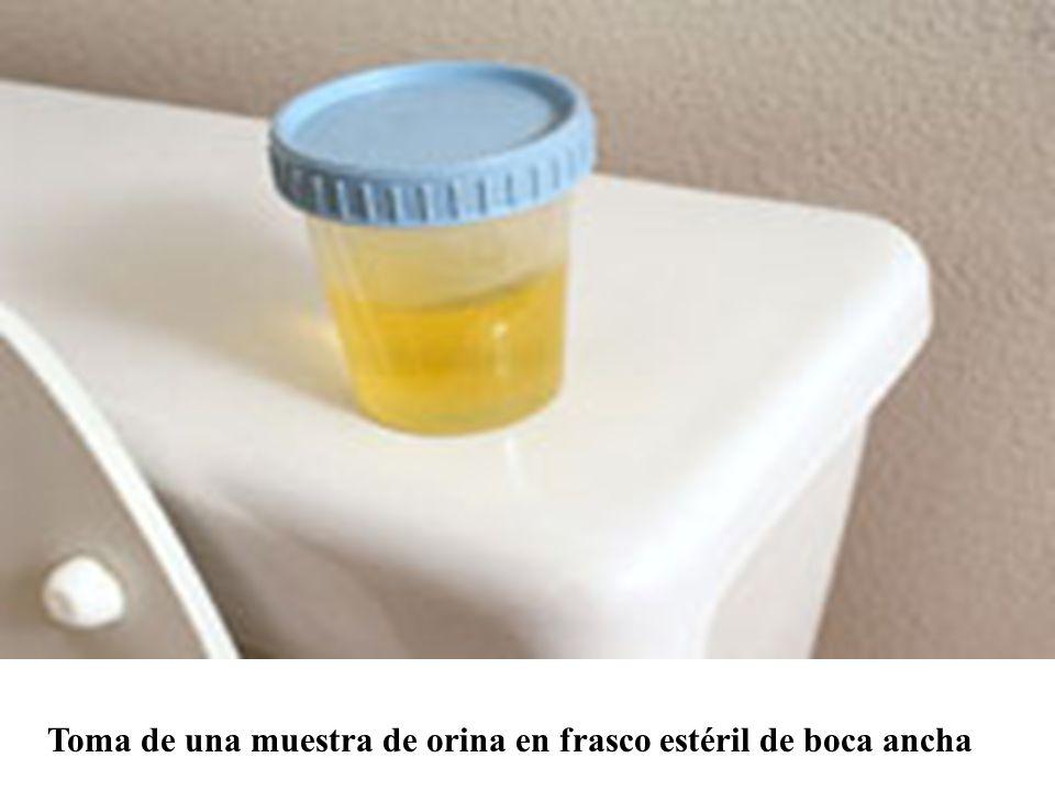 Toma de una muestra de orina en frasco estéril de boca ancha