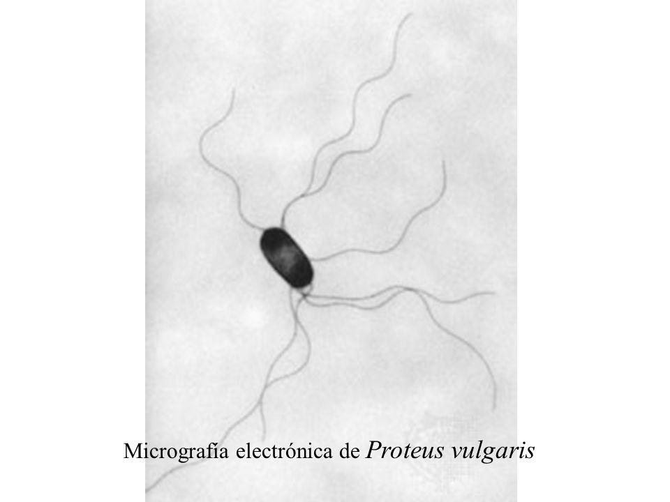 Izq.: placa de agar sangre mostrando el efecto hauch de una cepa de Proteus sp.