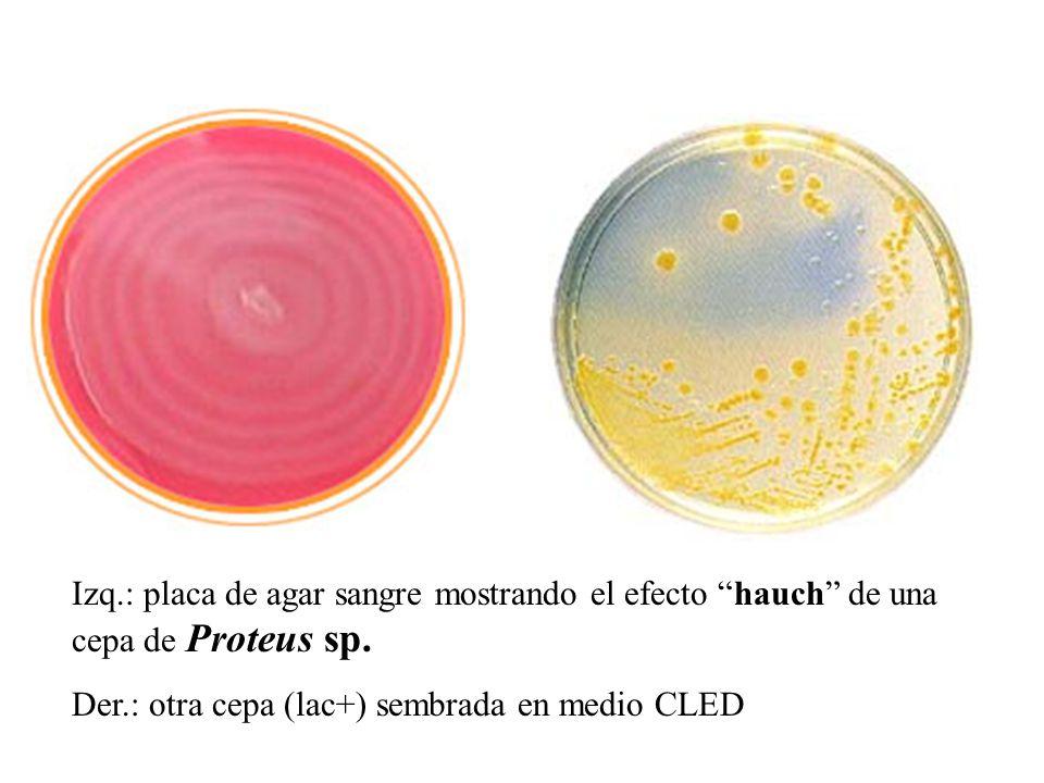 Izq.: placa de agar sangre mostrando el efecto hauch de una cepa de Proteus sp. Der.: otra cepa (lac+) sembrada en medio CLED