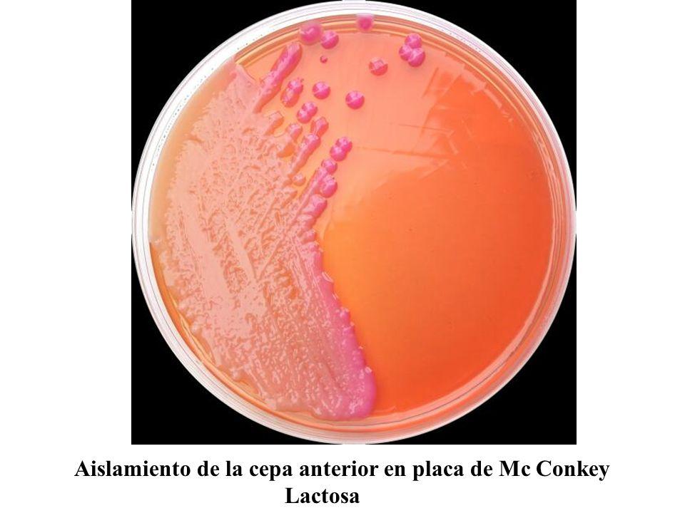 Placa de agar sangre sembrada con cepas de Streptococcus del grupo B (nótese factor CAMP)