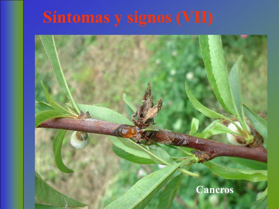 Síntomas y signos (VII) Cancros