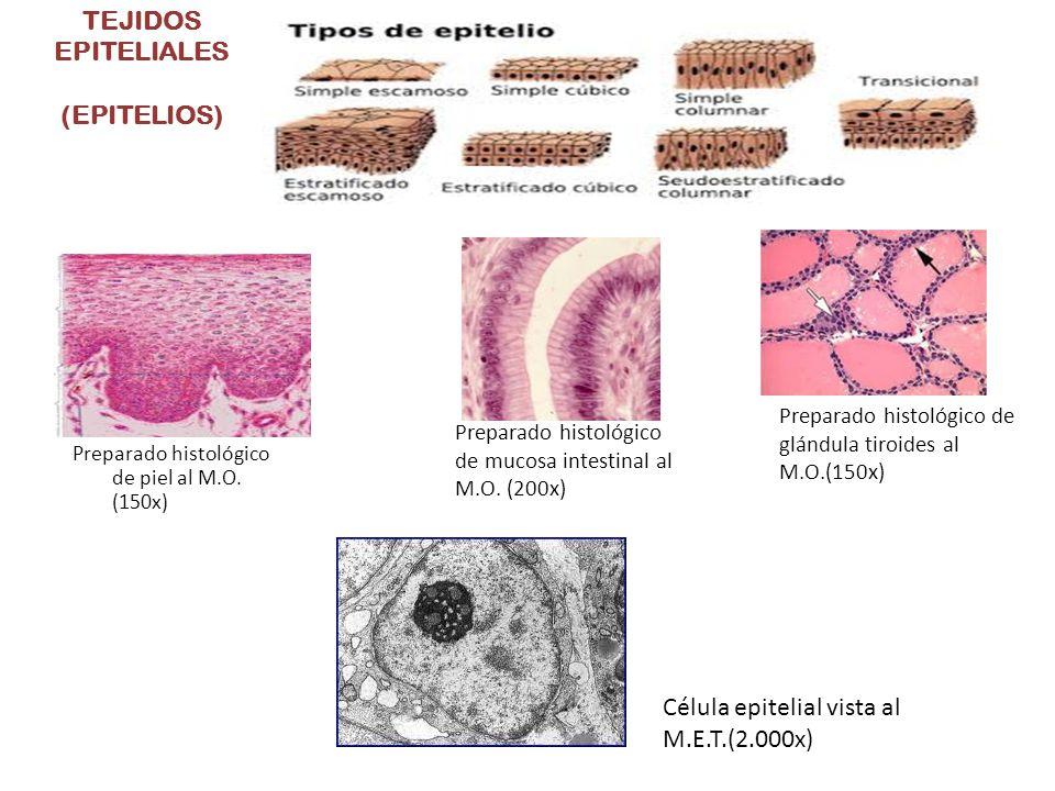 TEJIDOS EPITELIALES (EPITELIOS) Preparado histológico de piel al M.O. (150x) Preparado histológico de mucosa intestinal al M.O. (200x) Preparado histo
