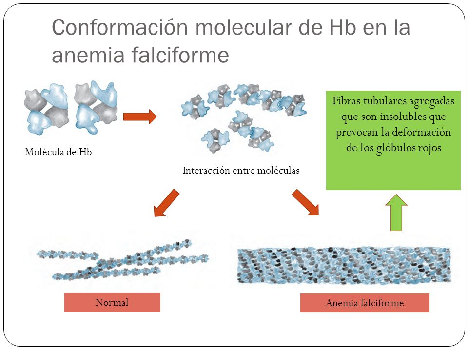 Conformación molecular de Hb en la anemia falciforme Molécula de Hb Interacción entre moléculas Normal Anemia falciforme Fibras tubulares agregadas que son insolubles que provocan la deformación de los glóbulos rojos