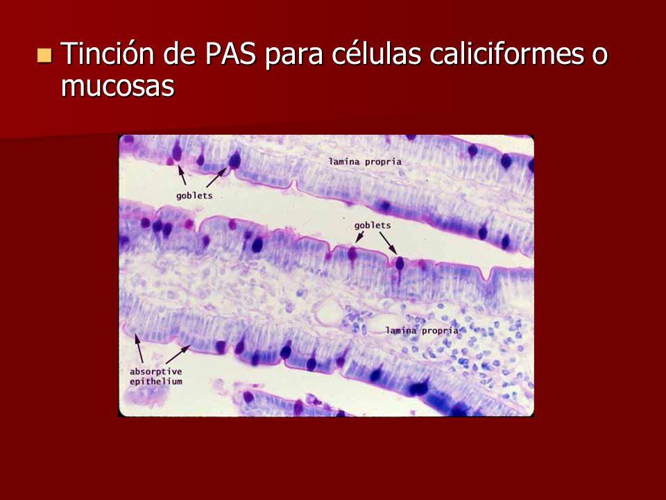 Tinción de PAS para células caliciformes o mucosas Tinción de PAS para células caliciformes o mucosas