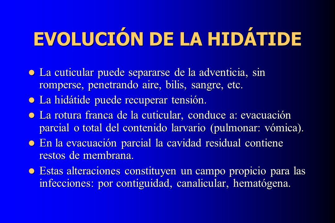 EVOLUCIÓN DE LA HIDÁTIDE La cuticular puede separarse de la adventicia, sin romperse, penetrando aire, bilis, sangre, etc. La cuticular puede separars