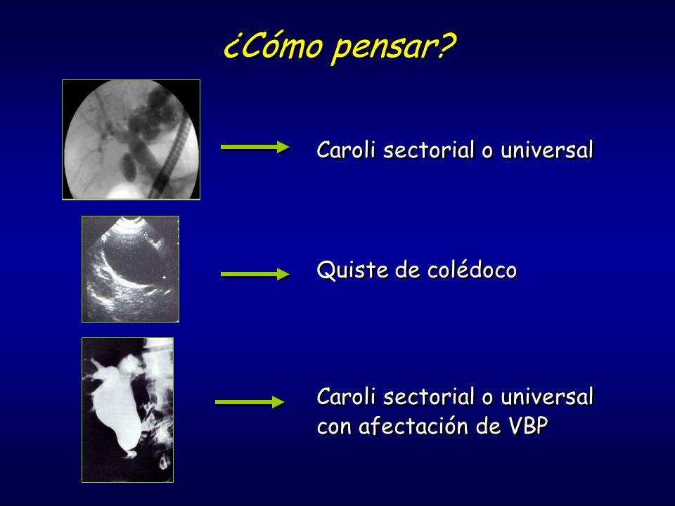 ¿Cómo pensar? Caroli sectorial o universal Quiste de colédoco Caroli sectorial o universal con afectación de VBP Caroli sectorial o universal con afec