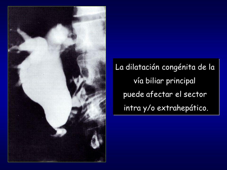 La dilatación congénita de la vía biliar principal puede afectar el sector intra y/o extrahepático. La dilatación congénita de la vía biliar principal