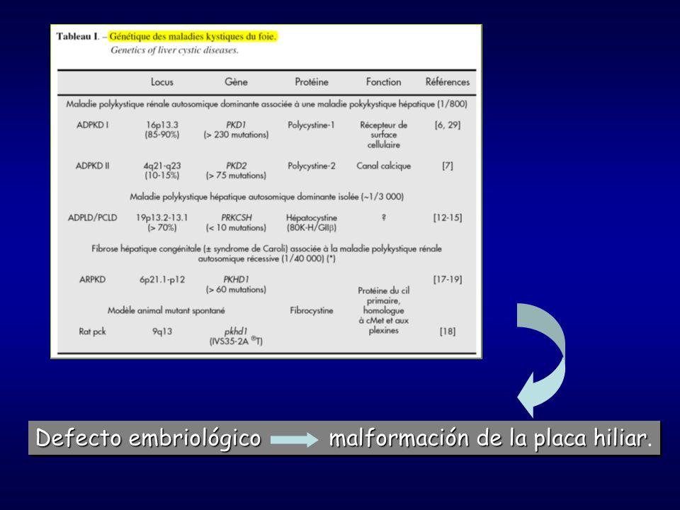 Defecto embriológico malformación de la placa hiliar Defecto embriológico malformación de la placa hiliar.
