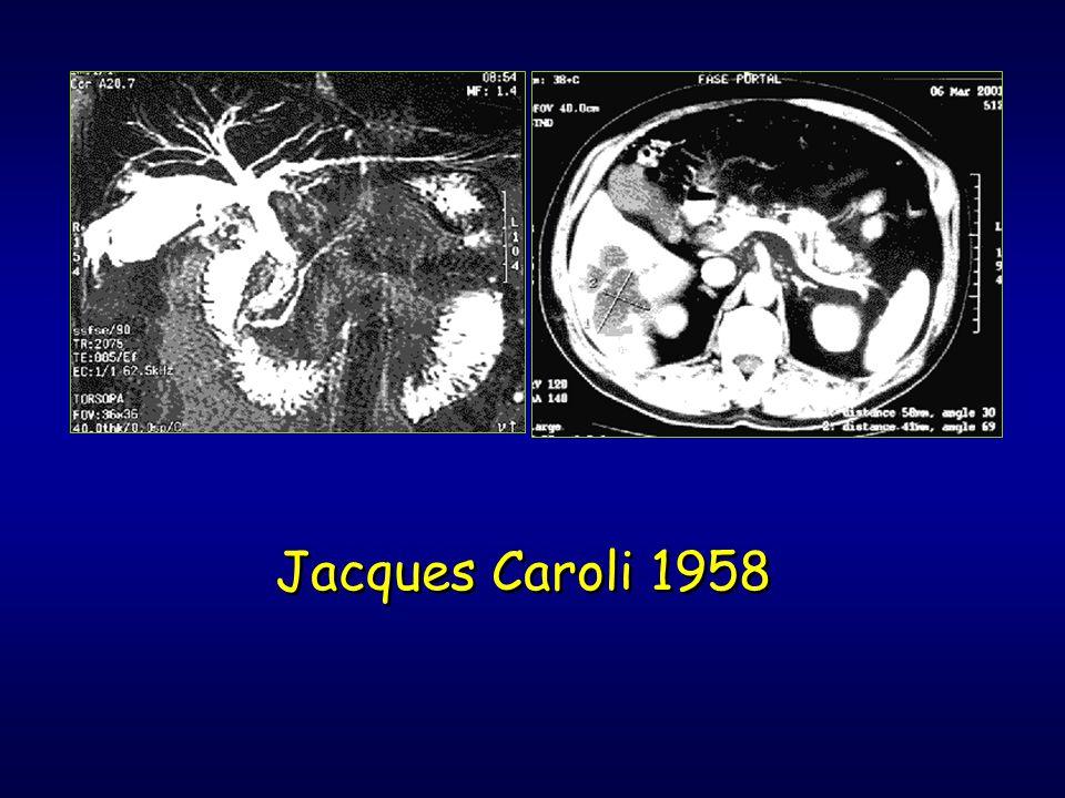 Jacques Caroli 1958