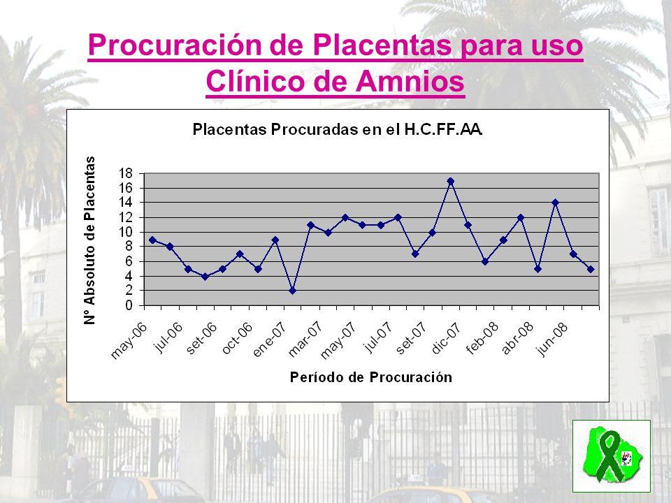 Procuración de Placentas para uso Clínico de Amnios