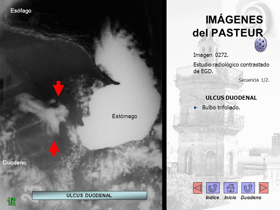 IMÁGENES del PASTEUR Imagen 0272. Estudio radiológico contrastado de EGD. Secuencia 1/2. ULCUS DUODENAL Bulbo trifoliado. ULCUS DUODENAL Estómago Duod