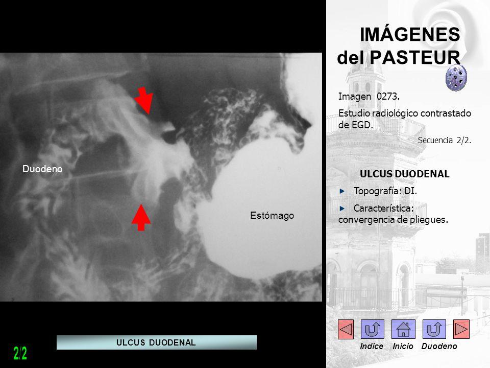 IMÁGENES del PASTEUR Imagen 0273. Estudio radiológico contrastado de EGD. Secuencia 2/2. ULCUS DUODENAL Topografía: DI. Característica: convergencia d