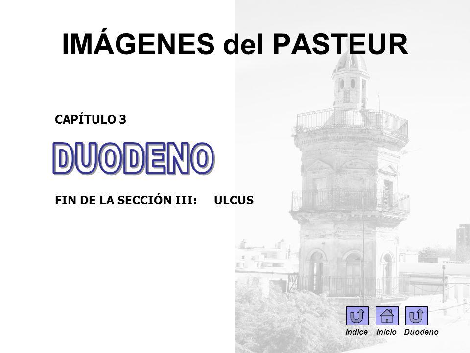 IMÁGENES del PASTEUR CAPÍTULO 3 FIN DE LA SECCIÓN III: ULCUS Indice Inicio Duodeno