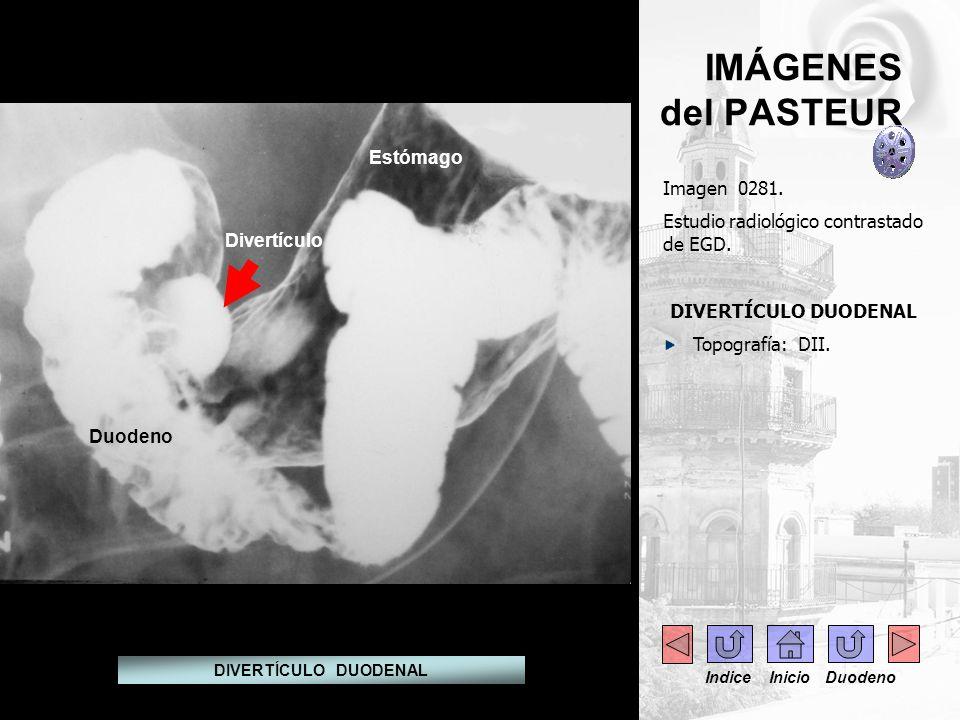 IMÁGENES del PASTEUR Imagen 0281. Estudio radiológico contrastado de EGD. DIVERTÍCULO DUODENAL Topografía: DII. DIVERTÍCULO DUODENAL Estómago Duodeno