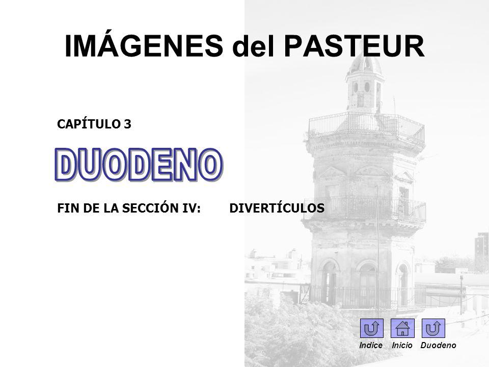 IMÁGENES del PASTEUR CAPÍTULO 3 FIN DE LA SECCIÓN IV: DIVERTÍCULOS Indice Inicio Duodeno