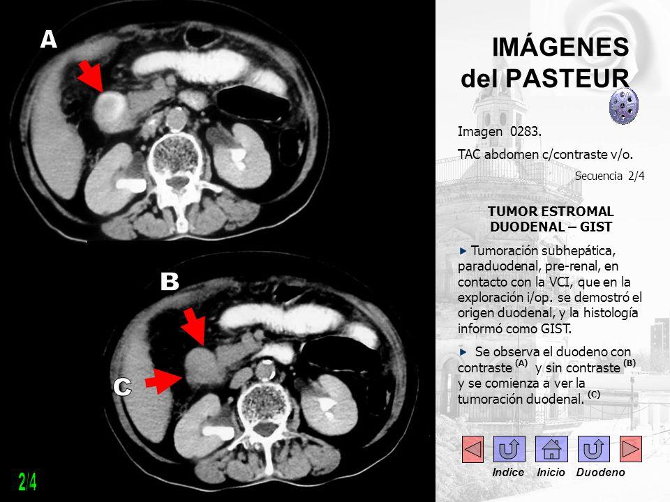 . Imagen 0283. TAC abdomen c/contraste v/o. Secuencia 2/4 TUMOR ESTROMAL DUODENAL – GIST Tumoración subhepática, paraduodenal, pre-renal, en contacto