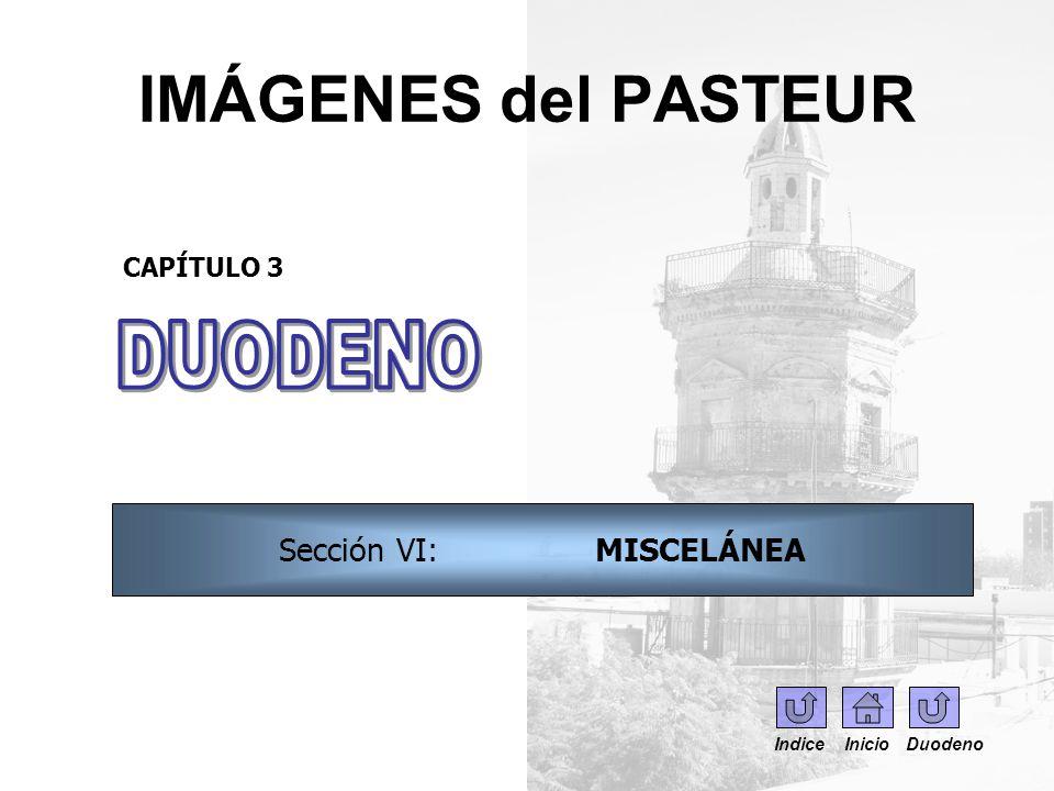 IMÁGENES del PASTEUR CAPÍTULO 3 Sección VI: MISCELÁNEA Indice Inicio Duodeno