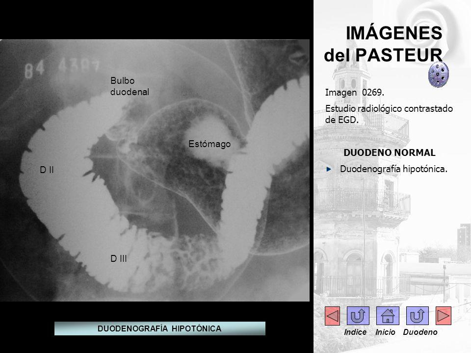 IMÁGENES del PASTEUR Indice Inicio Duodeno Imagen 0269. Estudio radiológico contrastado de EGD. DUODENO NORMAL Duodenografía hipotónica. DUODENOGRAFÍA