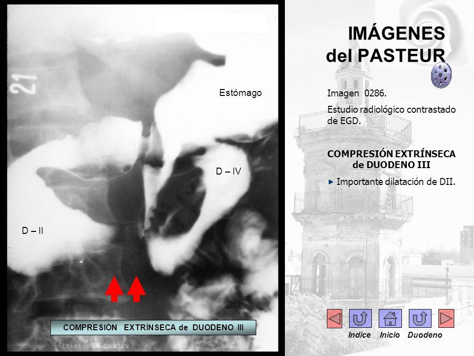 IMÁGENES del PASTEUR Imagen 0286. Estudio radiológico contrastado de EGD. COMPRESIÓN EXTRÍNSECA de DUODENO III Importante dilatación de DII. Estómago