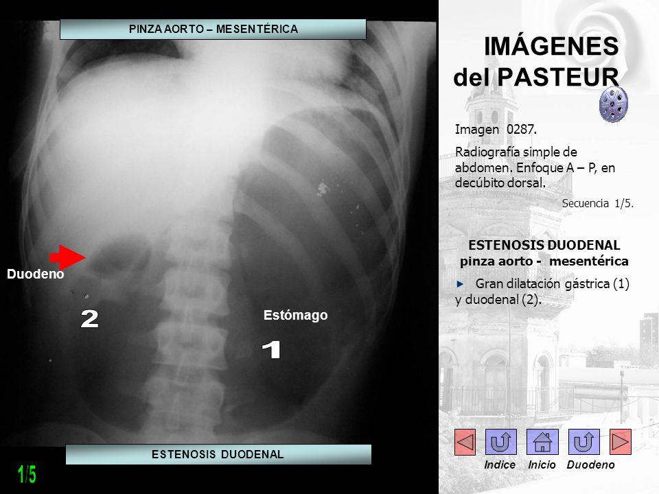 IMÁGENES del PASTEUR Imagen 0287. Radiografía simple de abdomen. Enfoque A – P, en decúbito dorsal. Secuencia 1/5. ESTENOSIS DUODENAL pinza aorto - me
