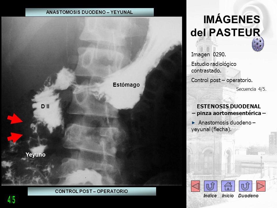 IMÁGENES del PASTEUR Imagen 0290. Estudio radiológico contrastado. Control post – operatorio. Secuencia 4/5. ESTENOSIS DUODENAL – pinza aortomesentéri